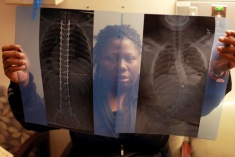 "Lawanda Booker compares before (right) and after X-ray photos of Edward's spinal fusion surgery at Shriners Hospitals for Children in Philadelphia. A bullet on Edward's spine was also removed during the surgery. Edward was shot five times by another 16-year-old, with unknown reason, while walking home with his sister from a birthday party. ""First time, I got a little shook-up. Second time, I hit the ground. Out of breath, pleading for my life,"" Edward said of the shooting."